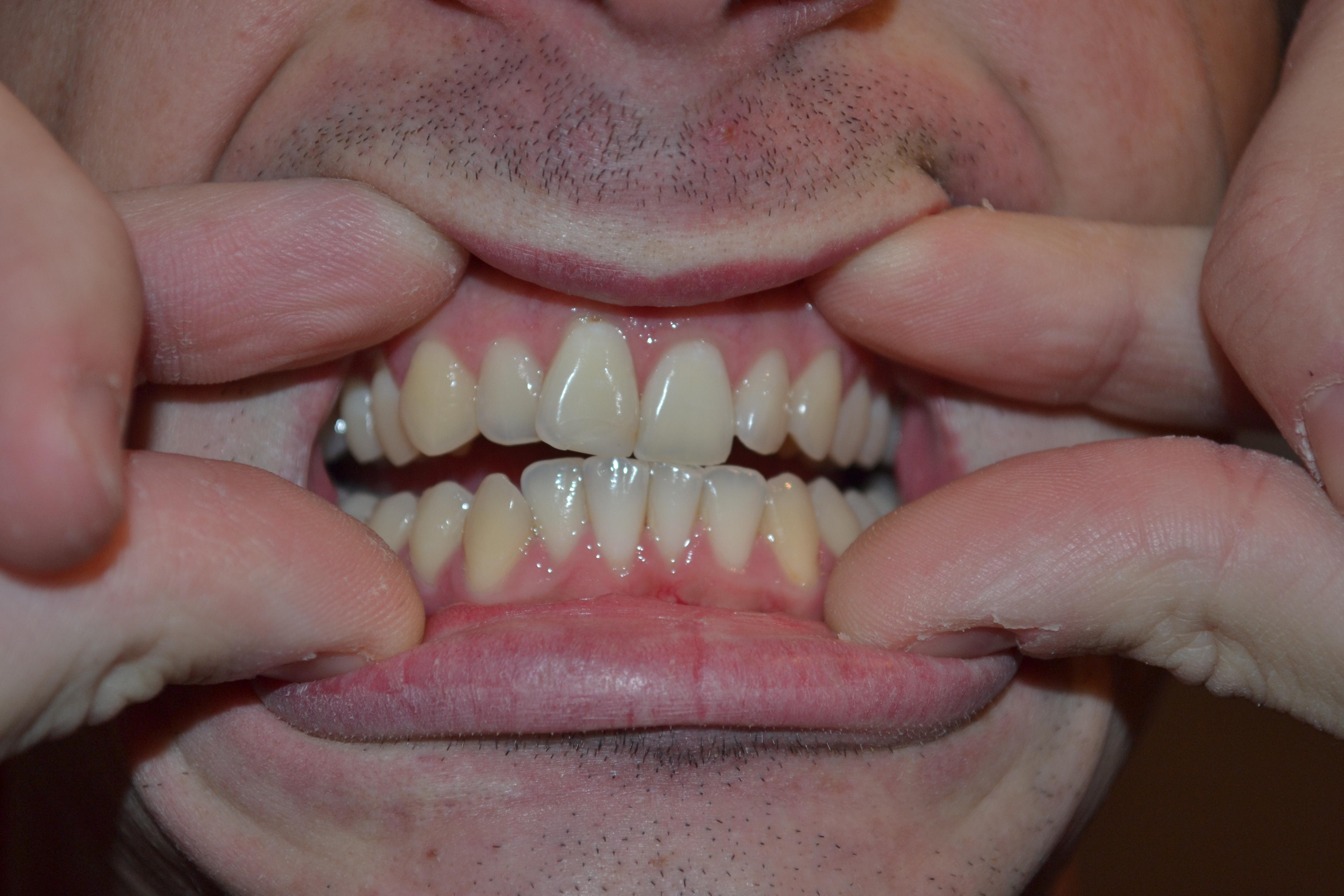 Si sono formati dei fori tra i denti inferiori durante il trattamento