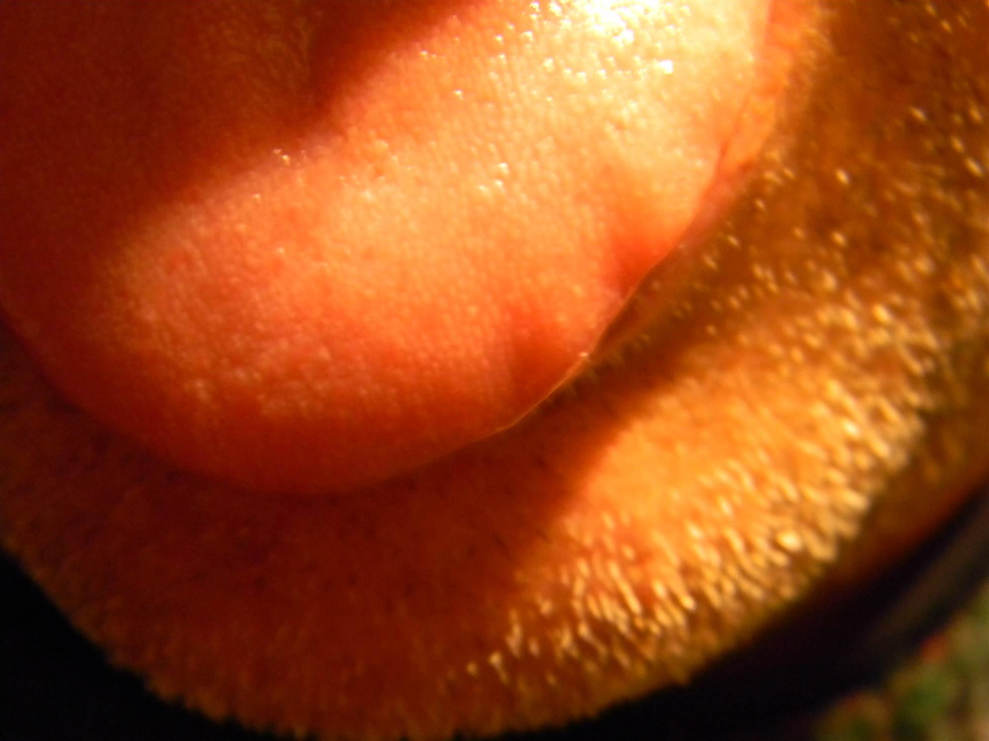 Da circa 6 mesi mi sono apparse tre bolle sul lato sinistro della lingua
