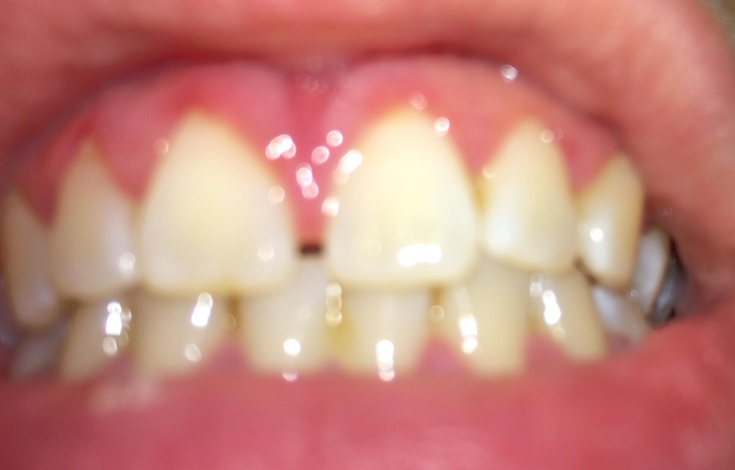 Gengiva gonfia tra i denti incisivi