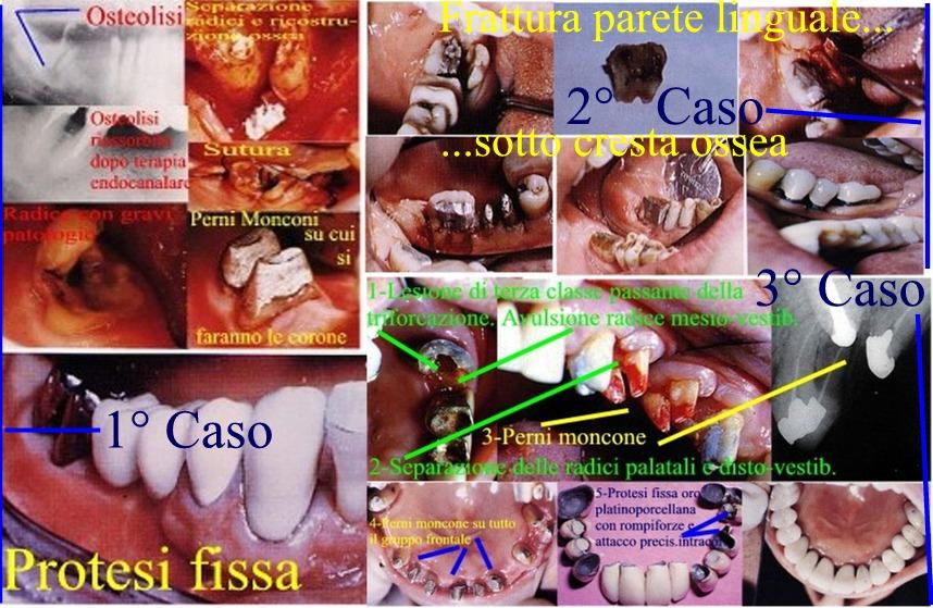Poster con denti molto compromessi per fratture, sfondamenti della camera pulpare, patologie parodontali salvati con chirurgia parodontale e pernimoncone e corone protesiche. Da casistica del Dr. Gustavo Petti Parodontologia e Riabilitazione Orale Protesica in casi Clinici Complessi, di Cagliari