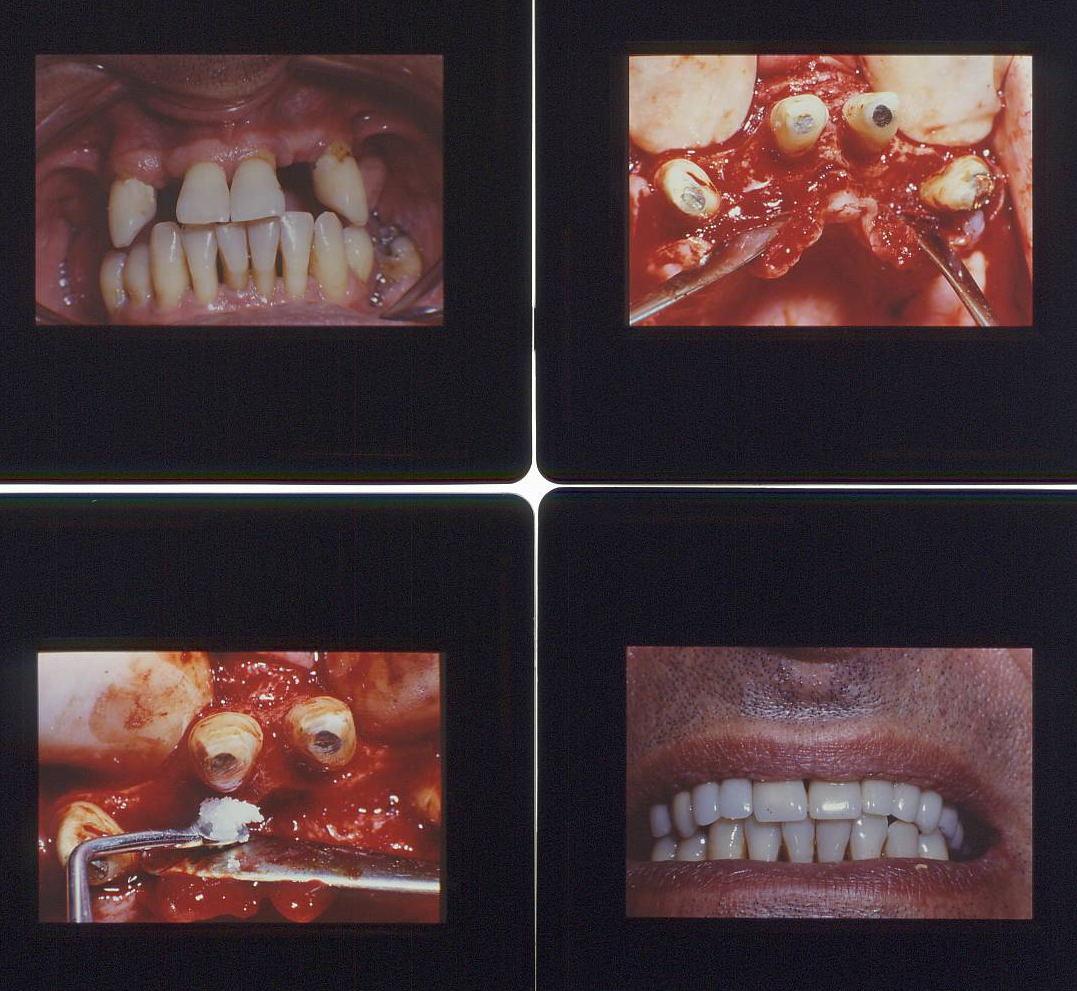 Poster di una protesi in oroplatinoporcellana telescopica per riabilitazione completa in casi clinici complessi per Parodontite. Da casistica del Dr. Gustavo Petti Parodontologo di Cagliari