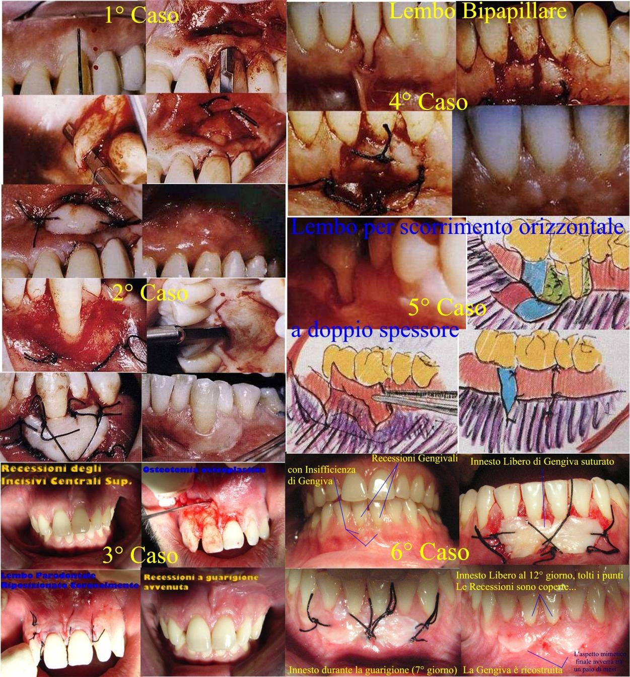 Poster con varie recessione e loro terapia chirurgica mucogengivale parodontale. Da casistica del Dr. Gustavo Petti Parodontologo di Cagliari