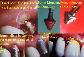 Pernomoncone e sua corona in oroplatinoporcellana. Da casistica Dottor Gustavo Petti Parodontologo Protesista di Cagliari