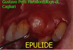 epilide-dr.g.petti-parodontologo-cagliari.jpg
