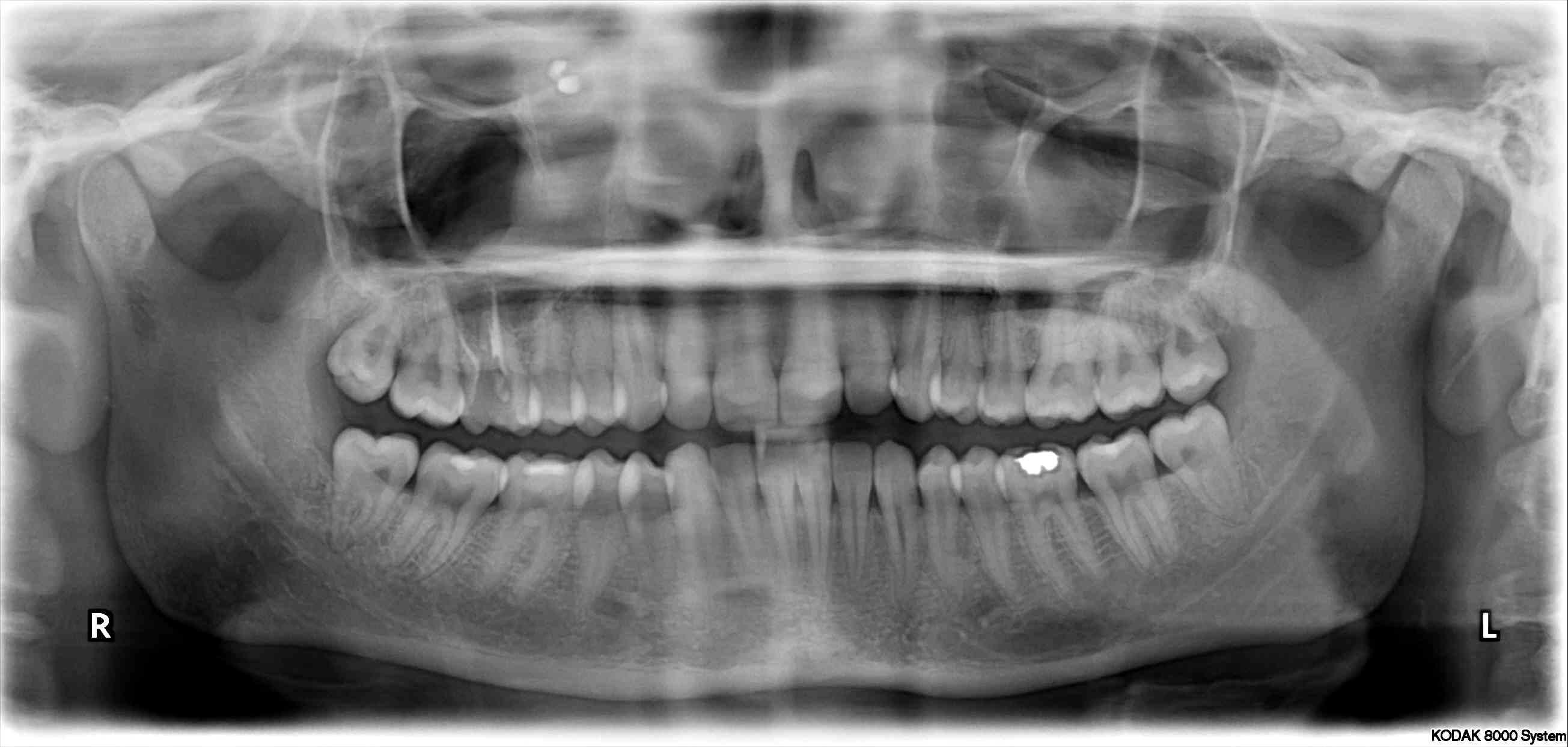 Tutto è iniziato con un semplice dolore ed una ipersensibilità al molare destro