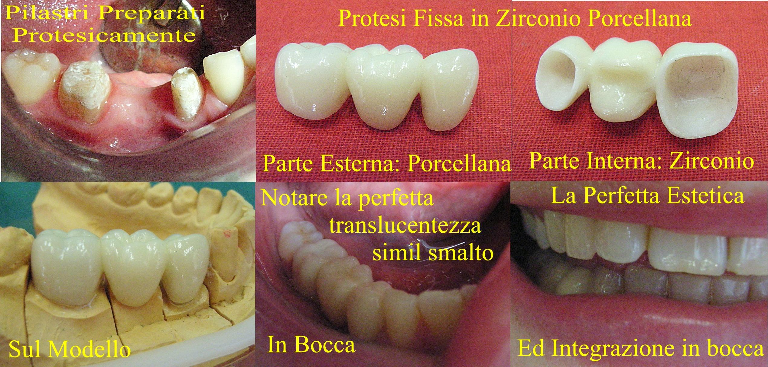 Protesi di tre elementi con due pilastri ed un elemento di ponte in Zirconio-Ceramica. Da casistica della Dr.ssa Claudia Petti Odontoiatra Protesista e Ortodontista di Cagliari
