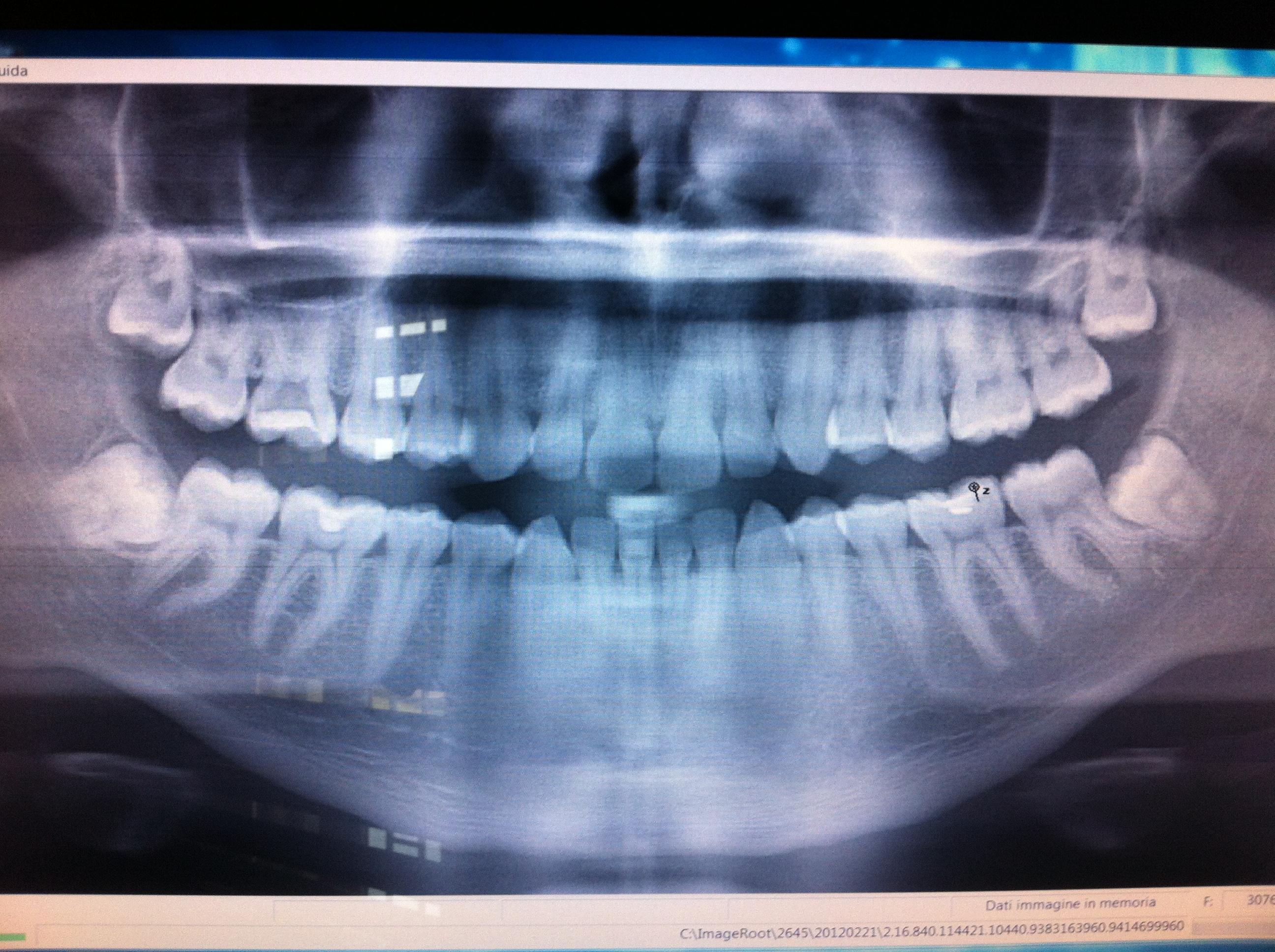 A luglio dovrei togliere il dente del giudizio inferiore destro in quanto storto incluso