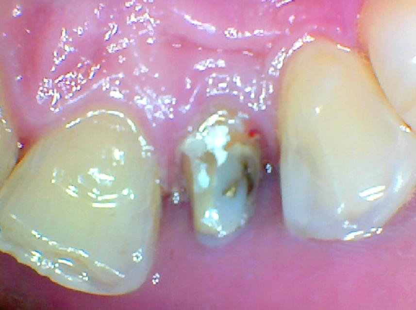 E' possibile ricostruire il dente invece di protesizzarlo?