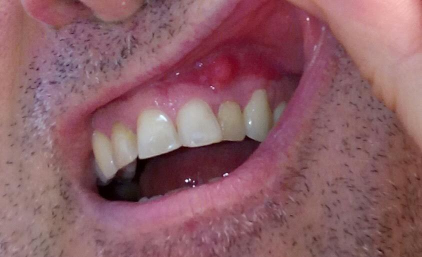 Lo scorso aprile sono stato sottoposto ad apicectomia al dente n. 22