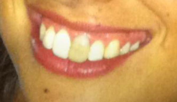 Il dente davanti più passa il tempo e più si scurisce