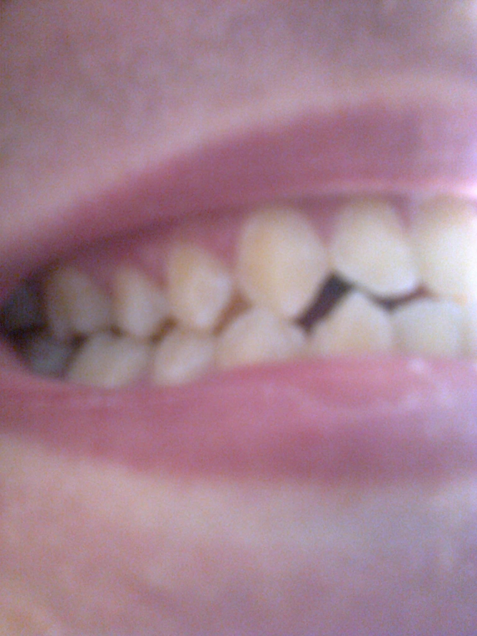 Ho 19 anni e convivo con un problema legato all'occlusione dentale