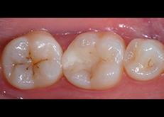 Da circa 2 mesi ho delle macchie nere piccole sulla parte interna dei denti