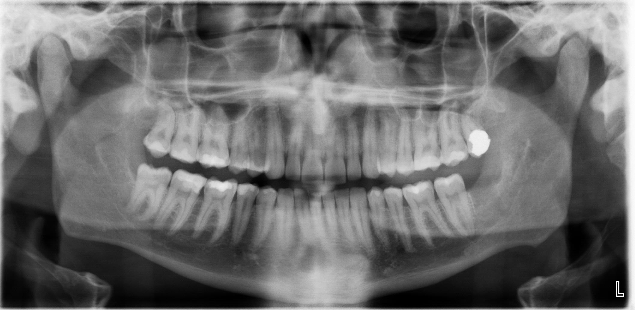 Il dentista non ha potuto rimuovere un piccolo pezzettino di radice dentale.