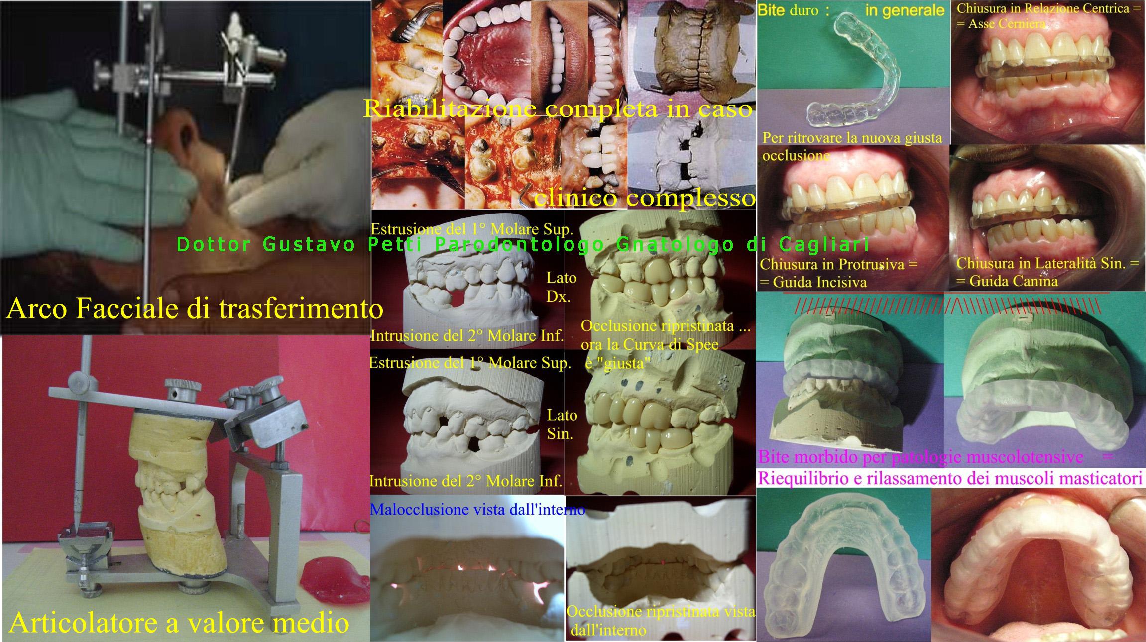 g-petti-gnatologia-1-.jpg