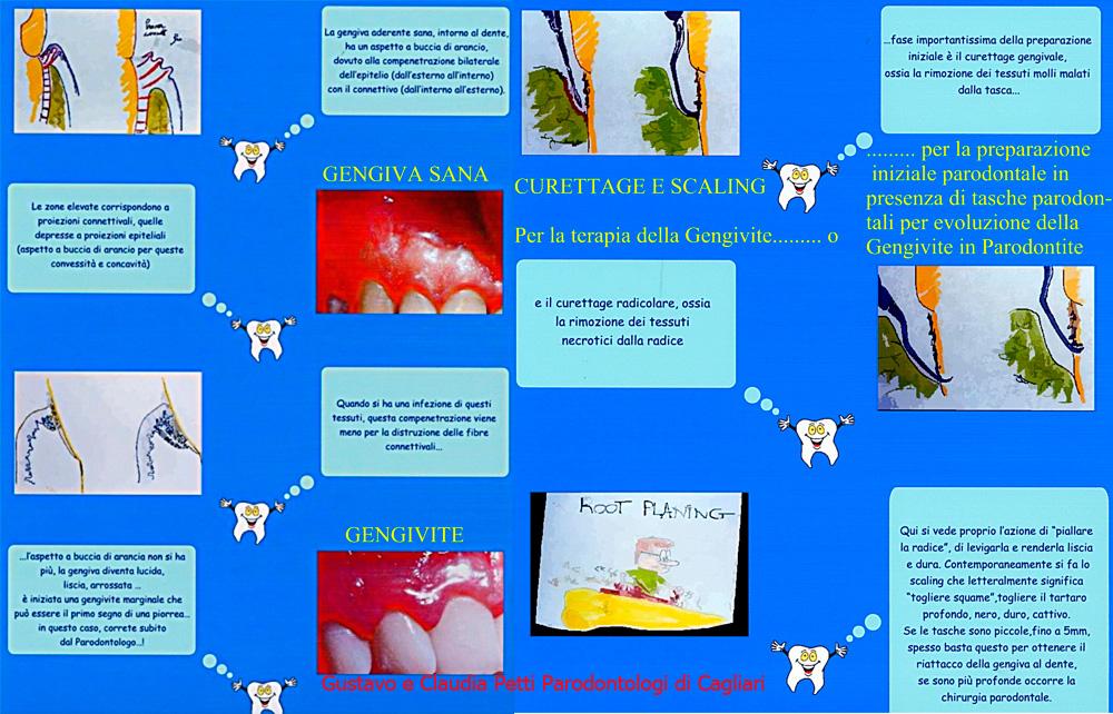 Gengivite, Parodontite e Curettage e Scaling e Root Planing. Da Dr. Gustavo e Dr.ssa Claudia Petti, Cagliari