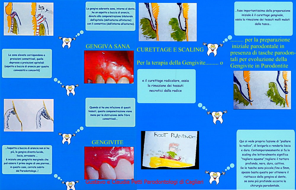 gengivite-g.ec.petti-cagliari-06.jpg