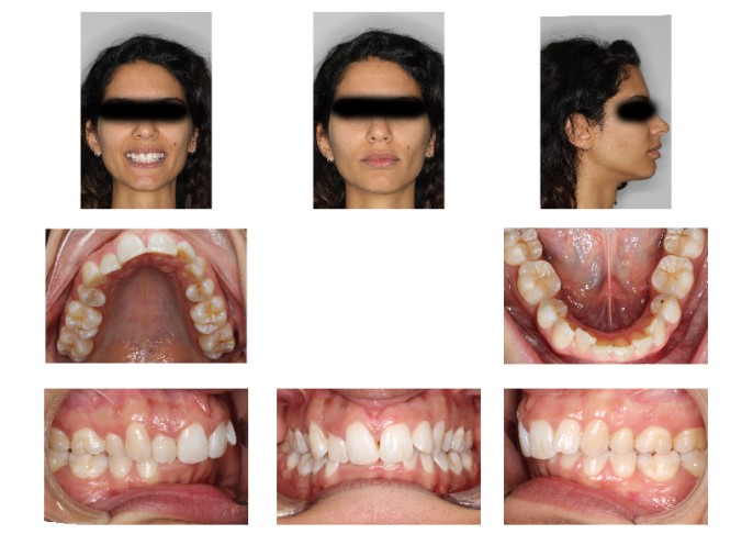 Dopo sei mesi di Invisalign ho notato dei cambiamenti non piacevoli nella parte inferiore della faccia.