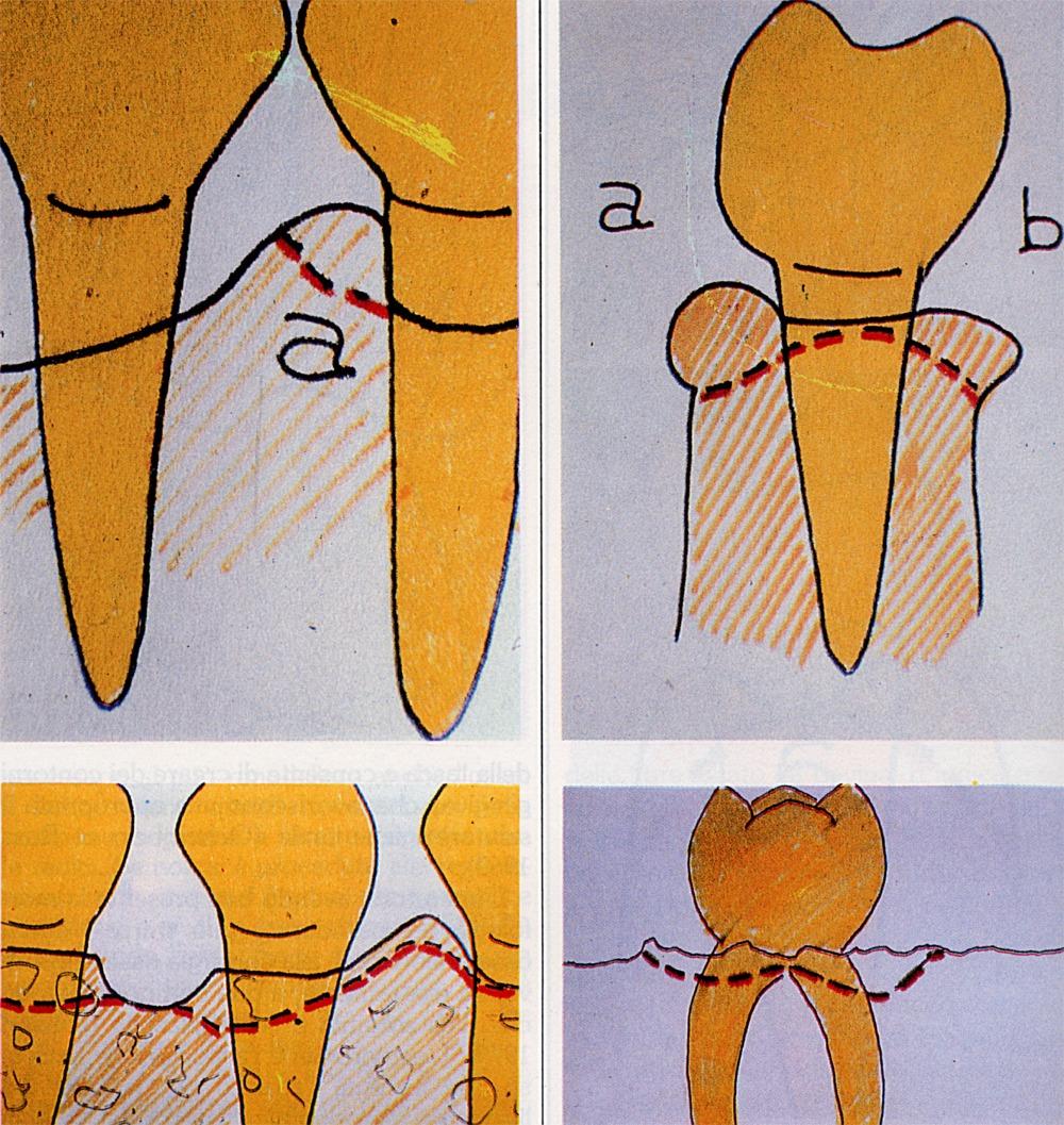 Chirurgia Ossea Parodontale da Atlante di Chirurgia Parodontale Scritto dal Dr. Gustavo Petti Parodontologo di Cagliari