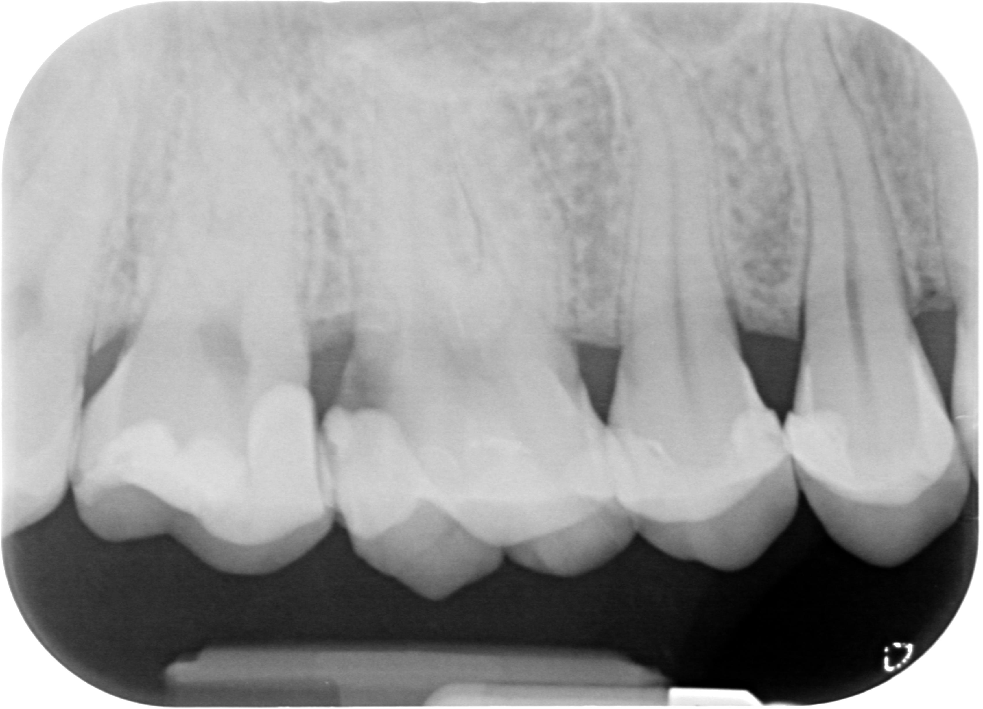 Sul molare superiore destro mi è stato detto che devo eseguire una devitalizzazione