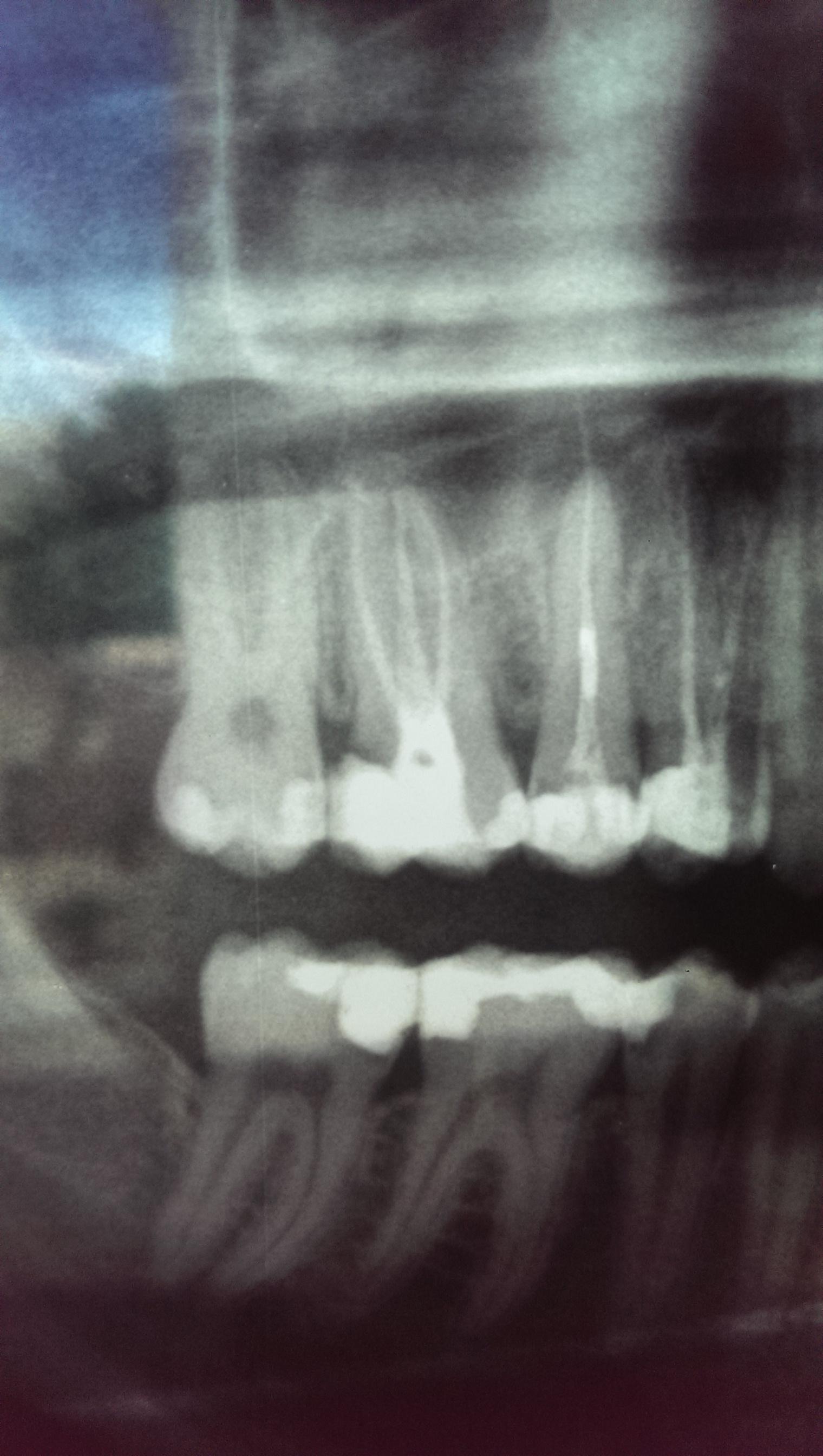 Il mio dentista dice che sarei cario recettivo con una materia dentale estremamente fragile