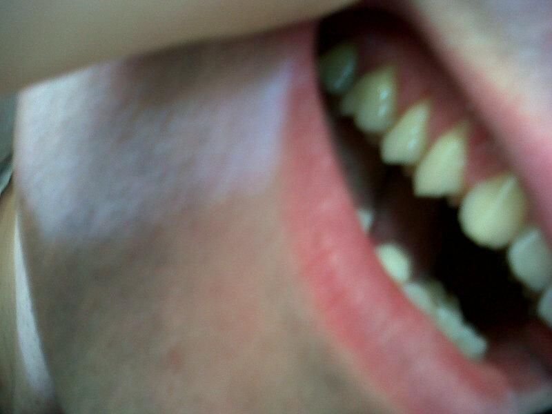 Il mio dentista ha riscontrato una recessione gengivale su tre denti posti sull'arcata superiore dx