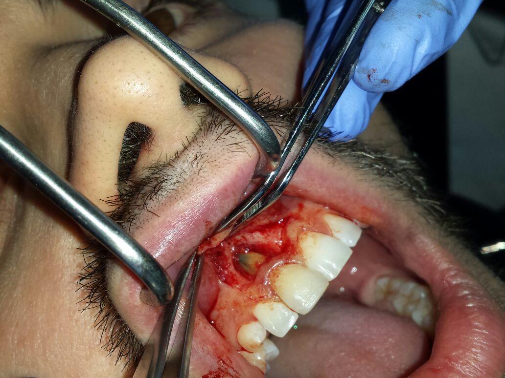 Durante l'intervento è stato scoperto che l'infezione era dovuta a una frattura sul dente