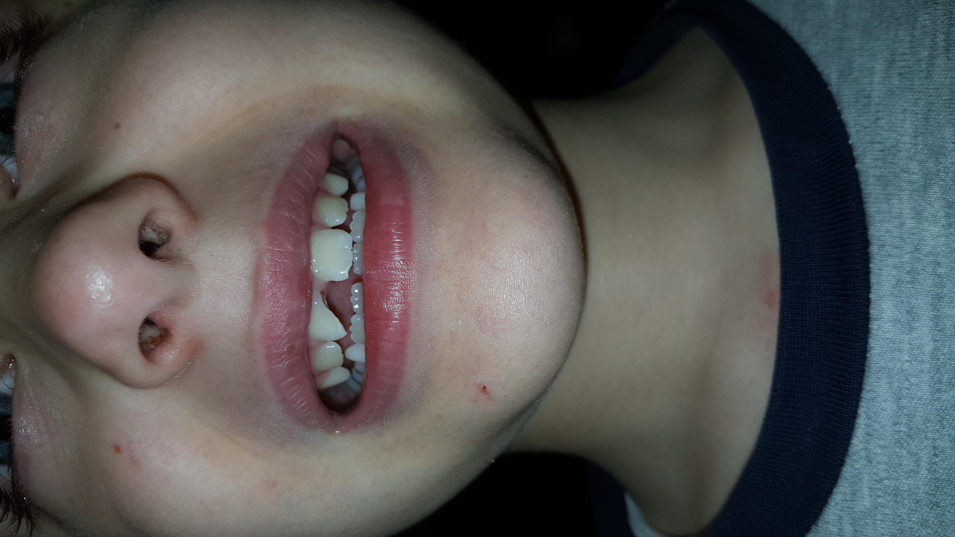 Mio figlio di 7 anni giocando a calcio e caduto rompendo l'incisivo