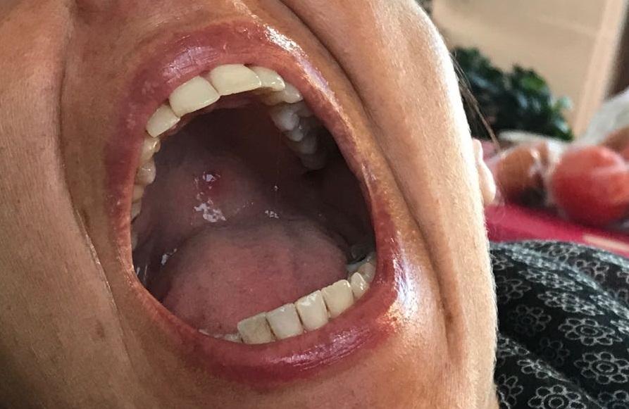 Da circa 20 giorni ho una bolla/macchia sul palato