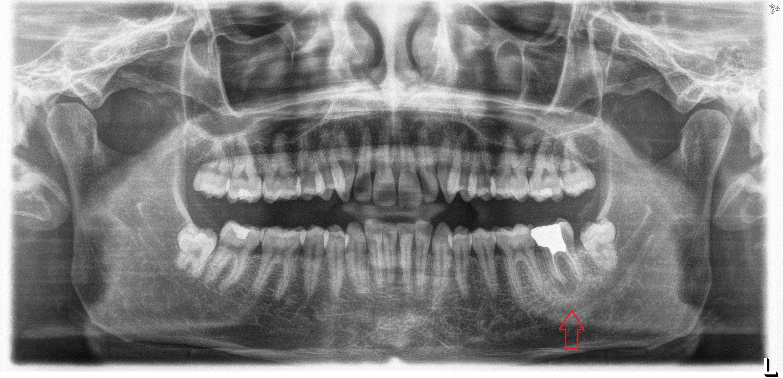 Conviene rimuovere anche il dente del giudizio prima di effettuare un impianto?