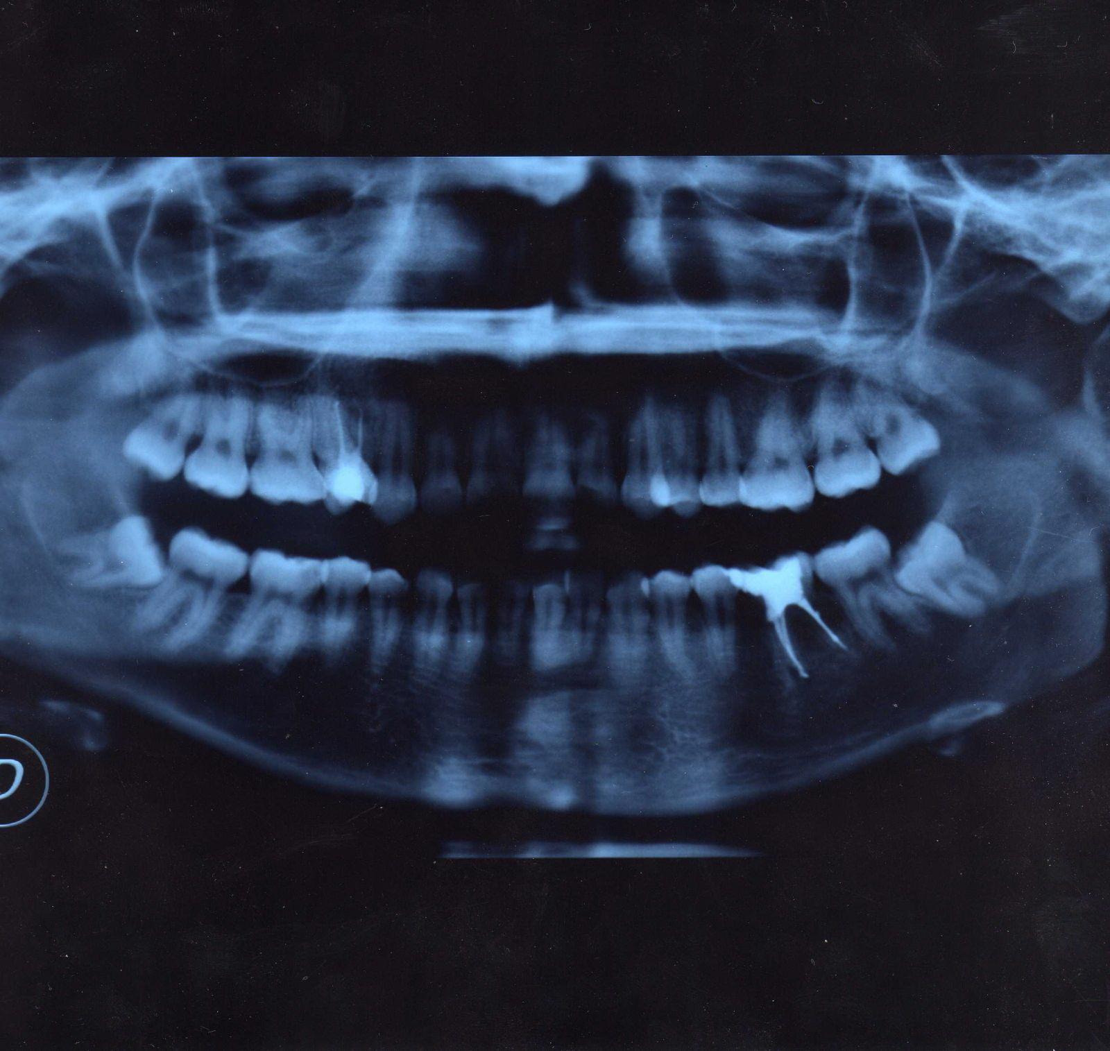 Seguito alla domanda: 10 anni fà ho portato un apparecchio fisso ai denti superiori