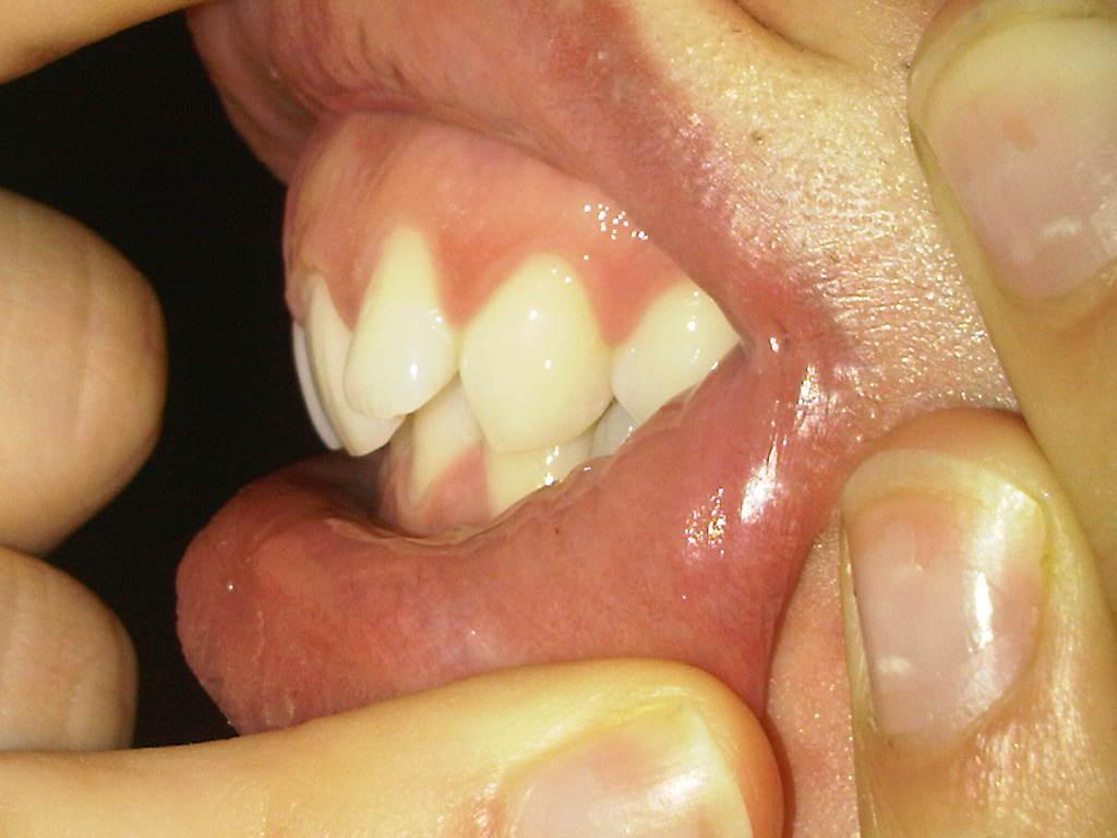 Ho deciso di iniziare un trattamento per correggere il mio morso profondo e raddrizzare i denti