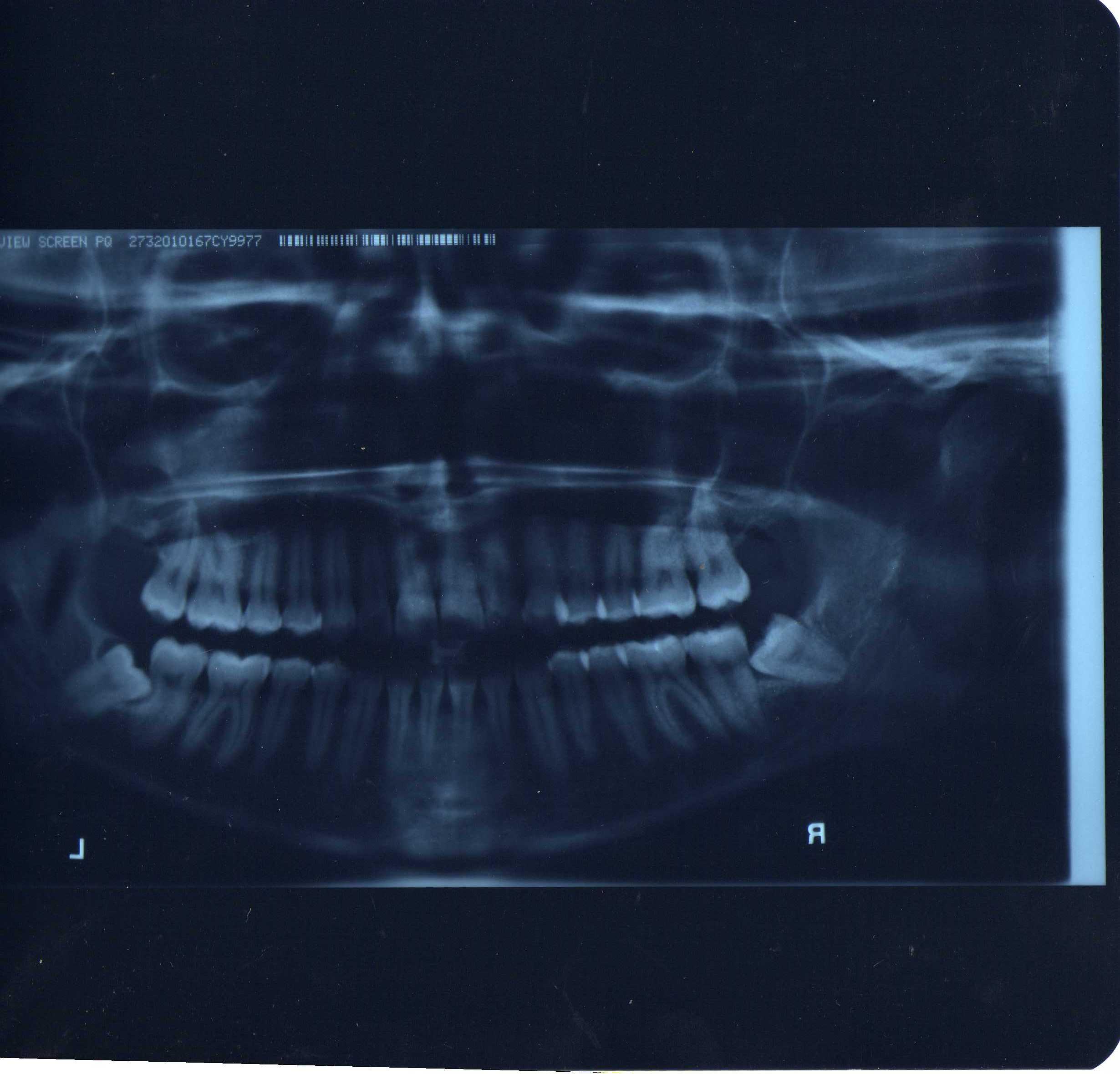 SEGUITO ALLA DOMANDA: Nel 2005 ho fatto una panoramica e mi è risultata una disodontiasi del 38 e del 48.
