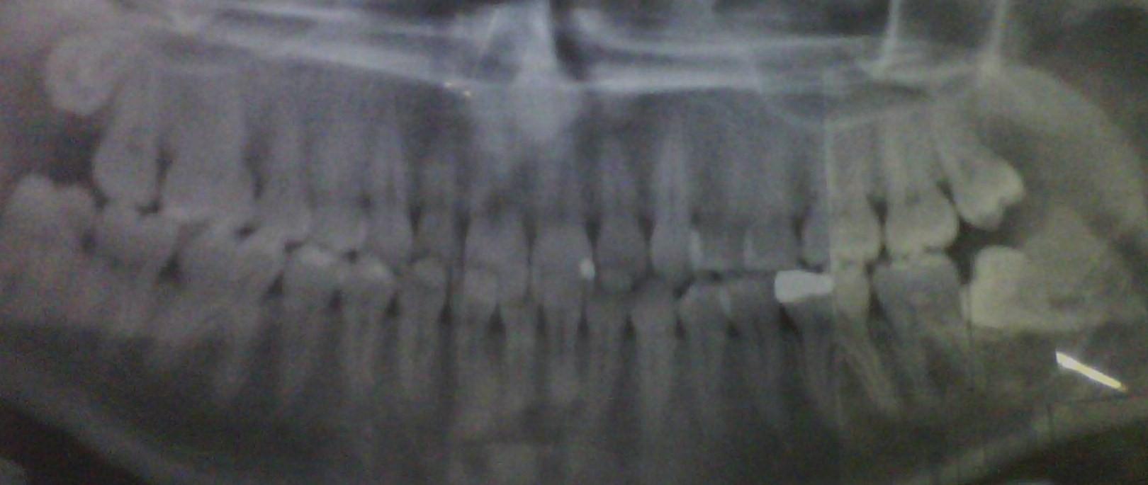 Ho fatto l'rx e dice disodontiasi in mesioversione
