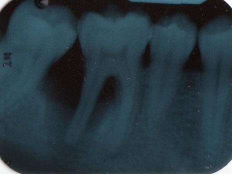 Come è possibile che l'osso che già manca da 6 anni si riformi da solo dopo l'estrazione?
