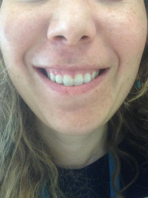 Ho il sorriso gengivale