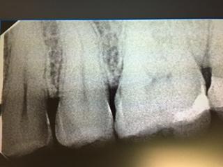 Ho un dolore ツ想ona premolare-molari' nell'arcata mandibolare superiore