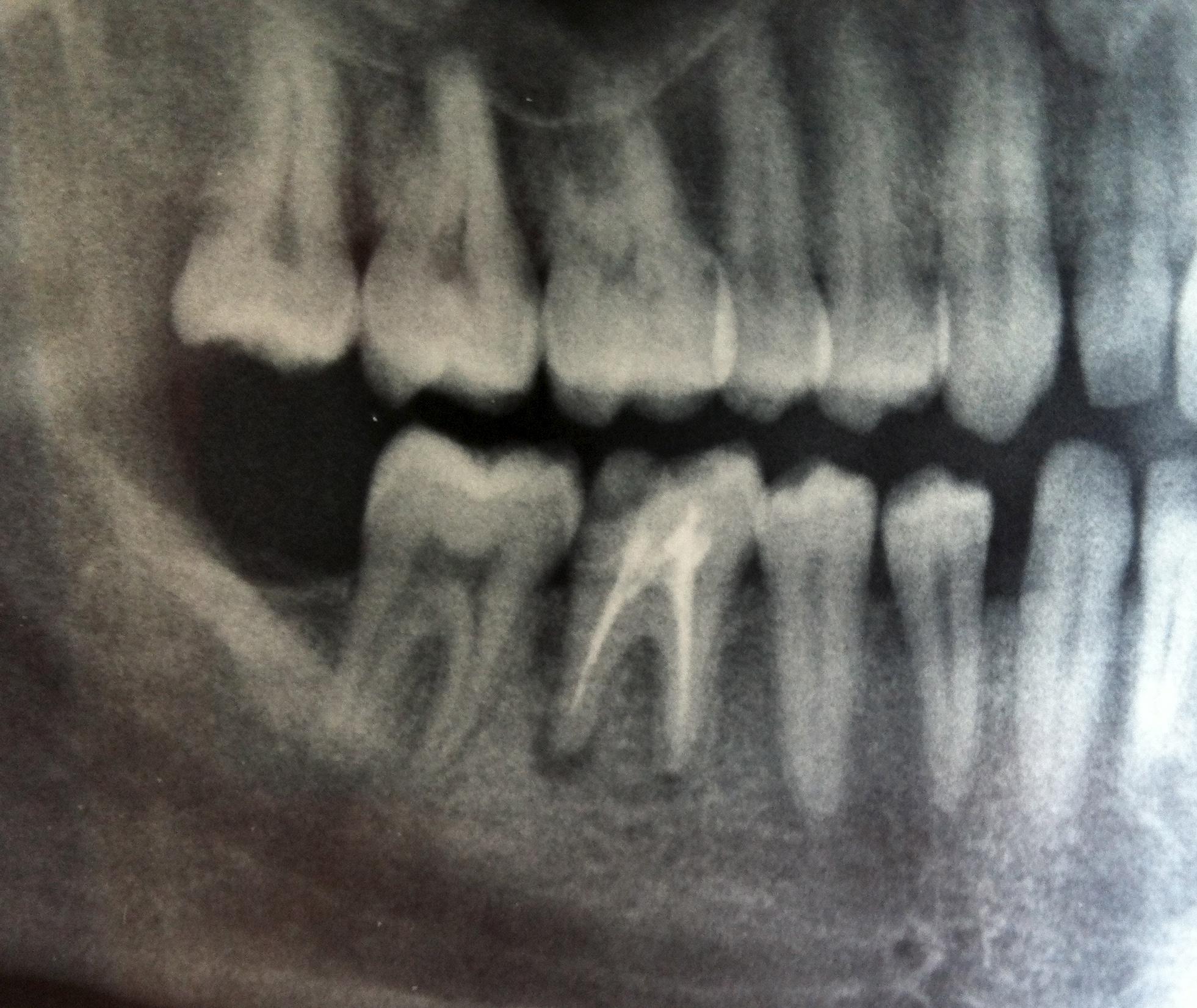 Al termine di una DEVITALIZZAZIONE di un molare inferiore, ho continuato anche dopo giorni ad avere disturbi