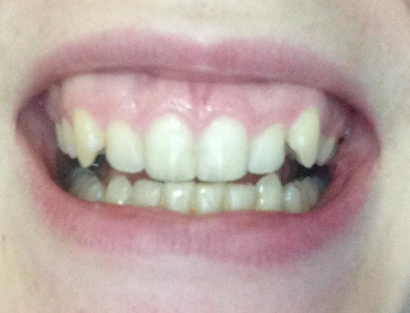 Migliorare il sorriso gengivale con l'utilizzo del laser