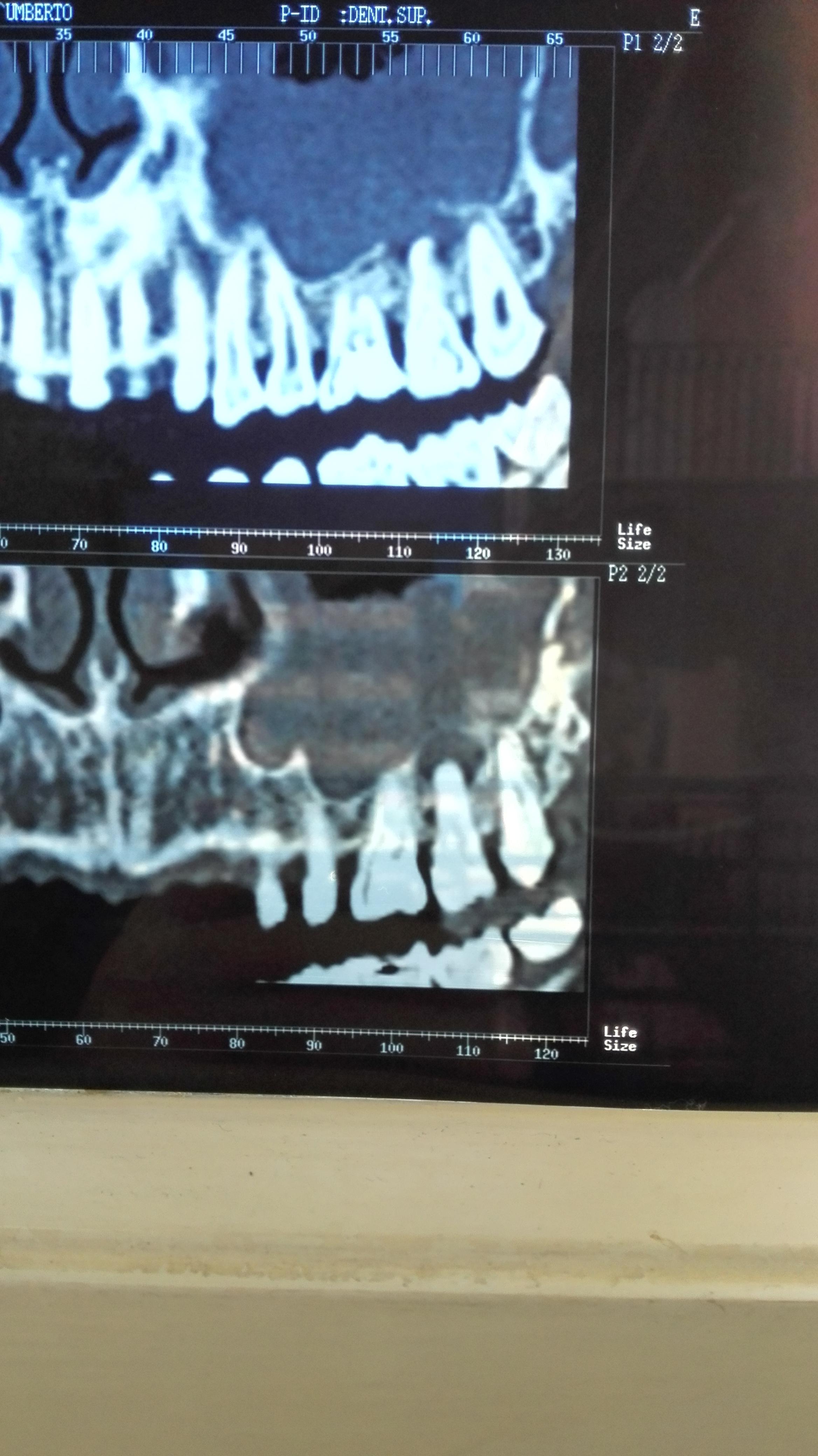 Mi è stata riscontrata una cisti radicolare sotto un molare il 27