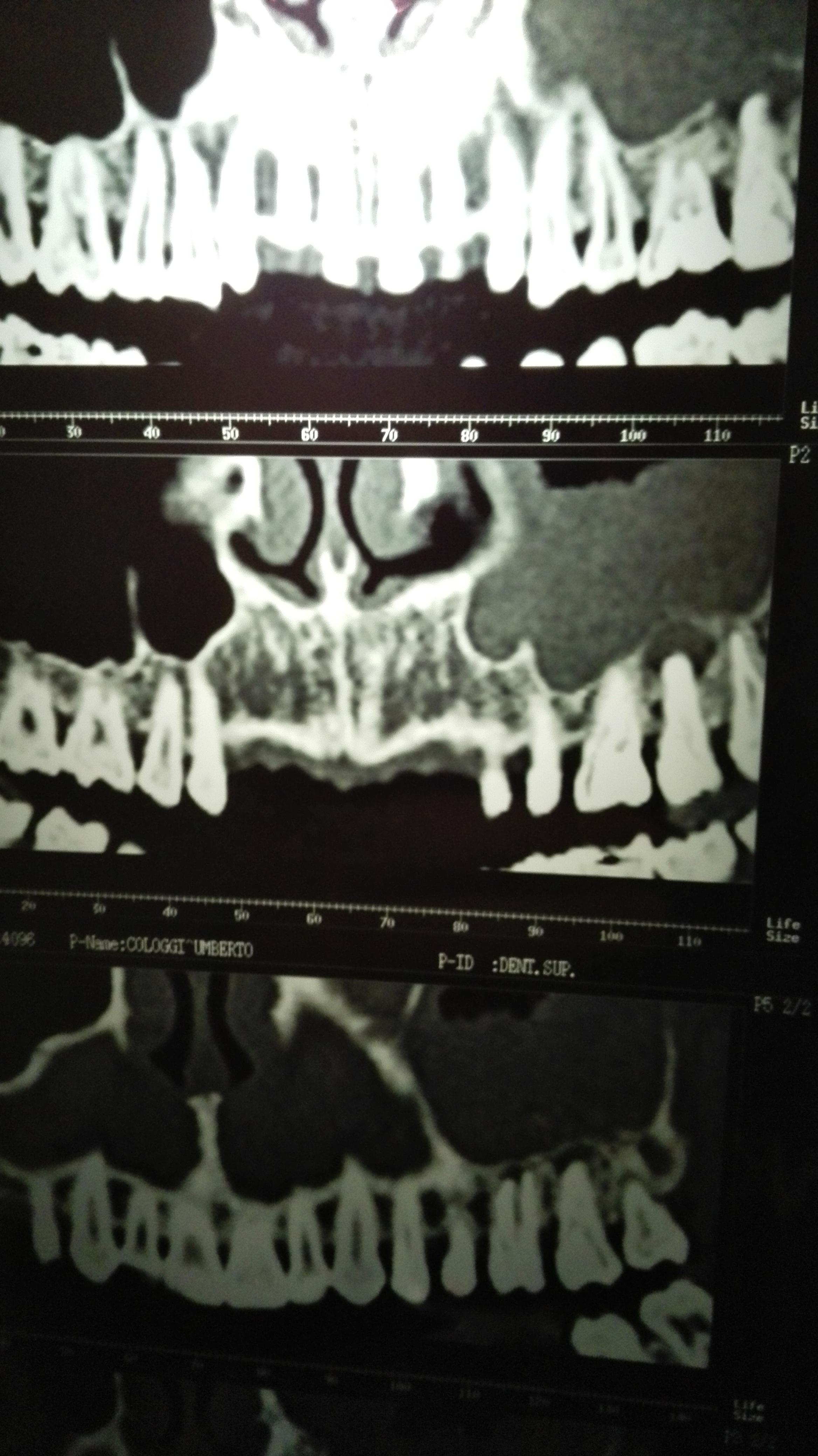 Mi è stata riscontrata una cisti nel molare