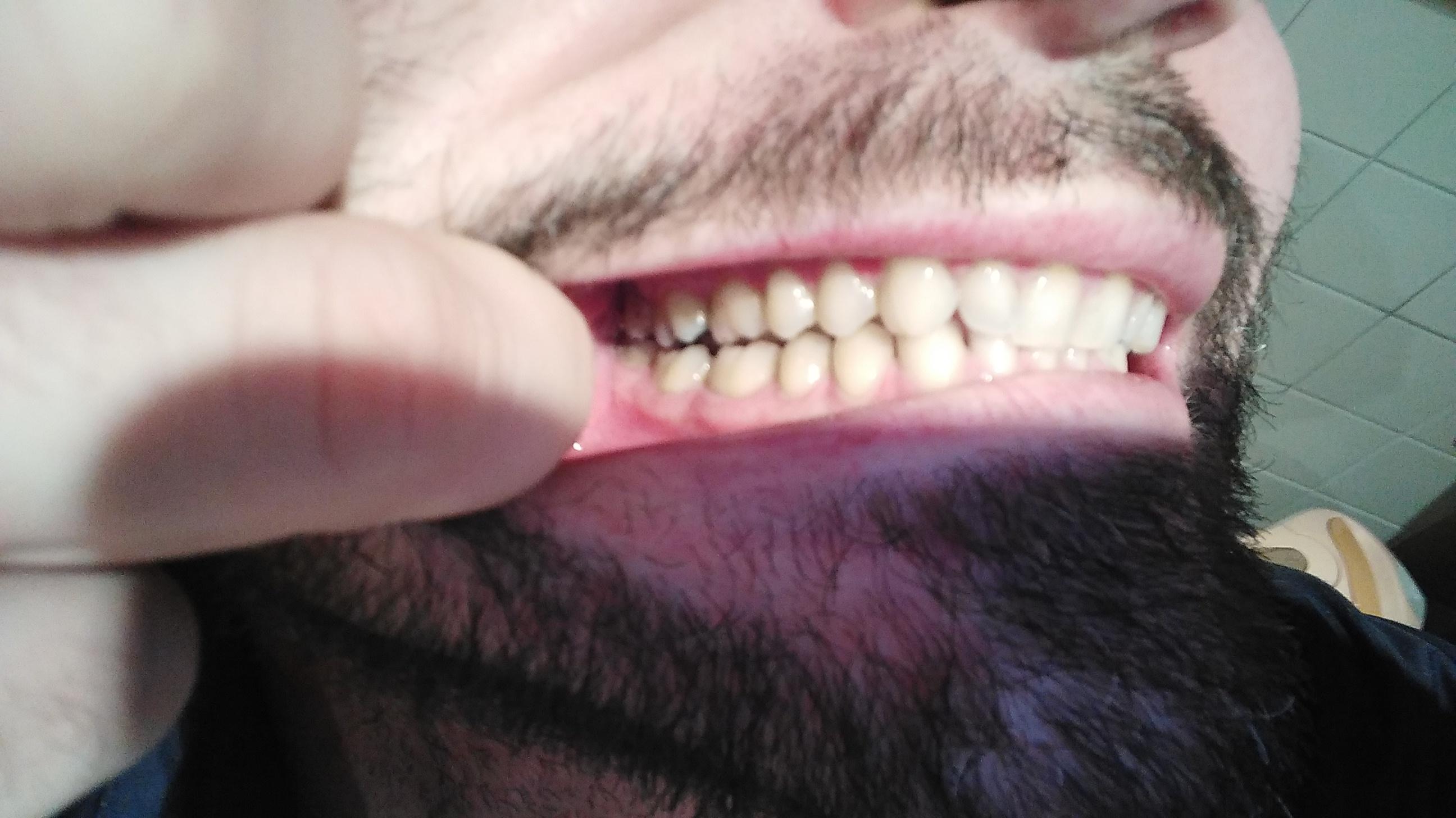 Secondo voi devo togliere un dente del giudizio a sx o no?
