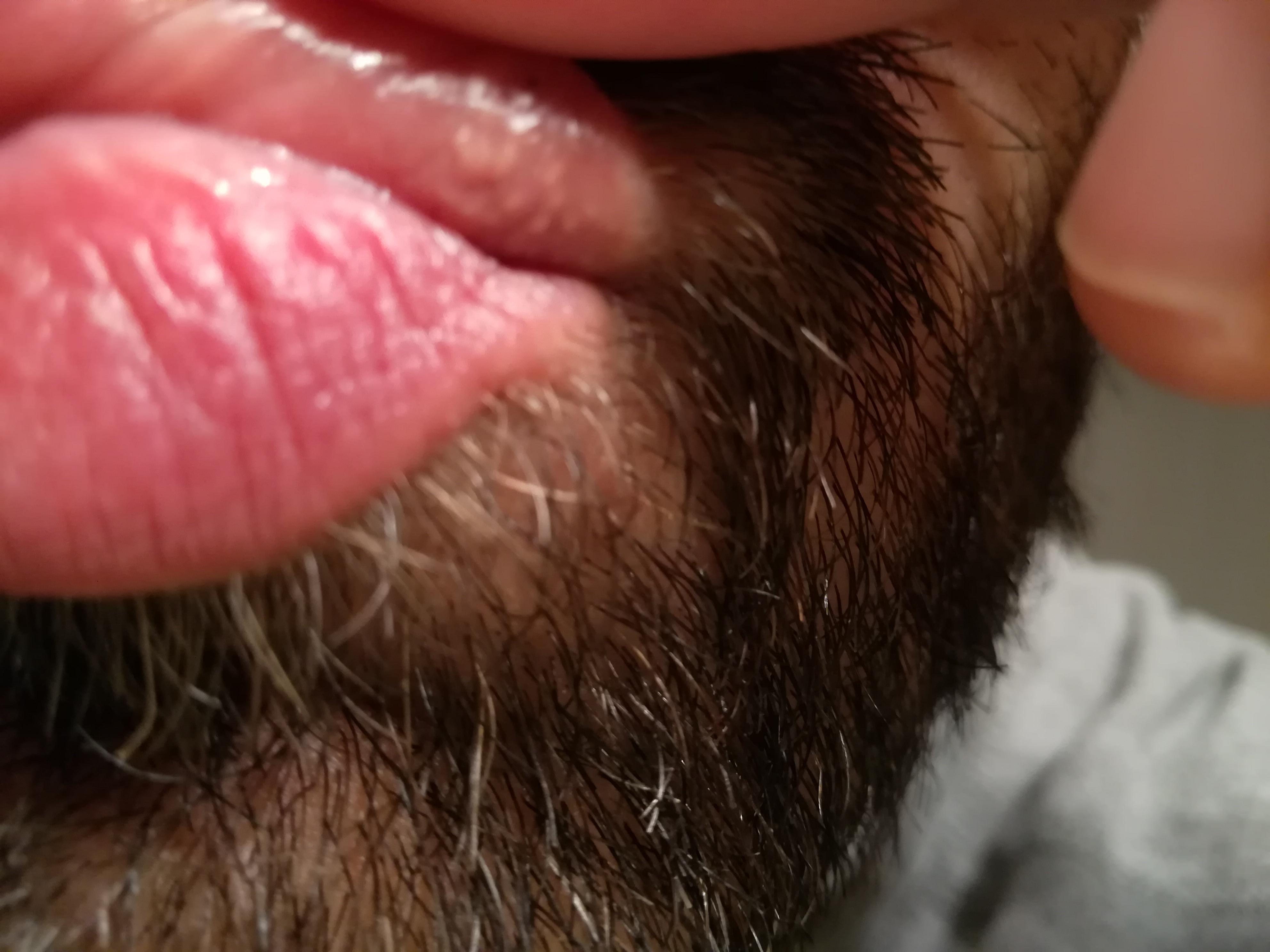 Da qualche anno ho delle macchie tipo puntini bianchi sul labbro