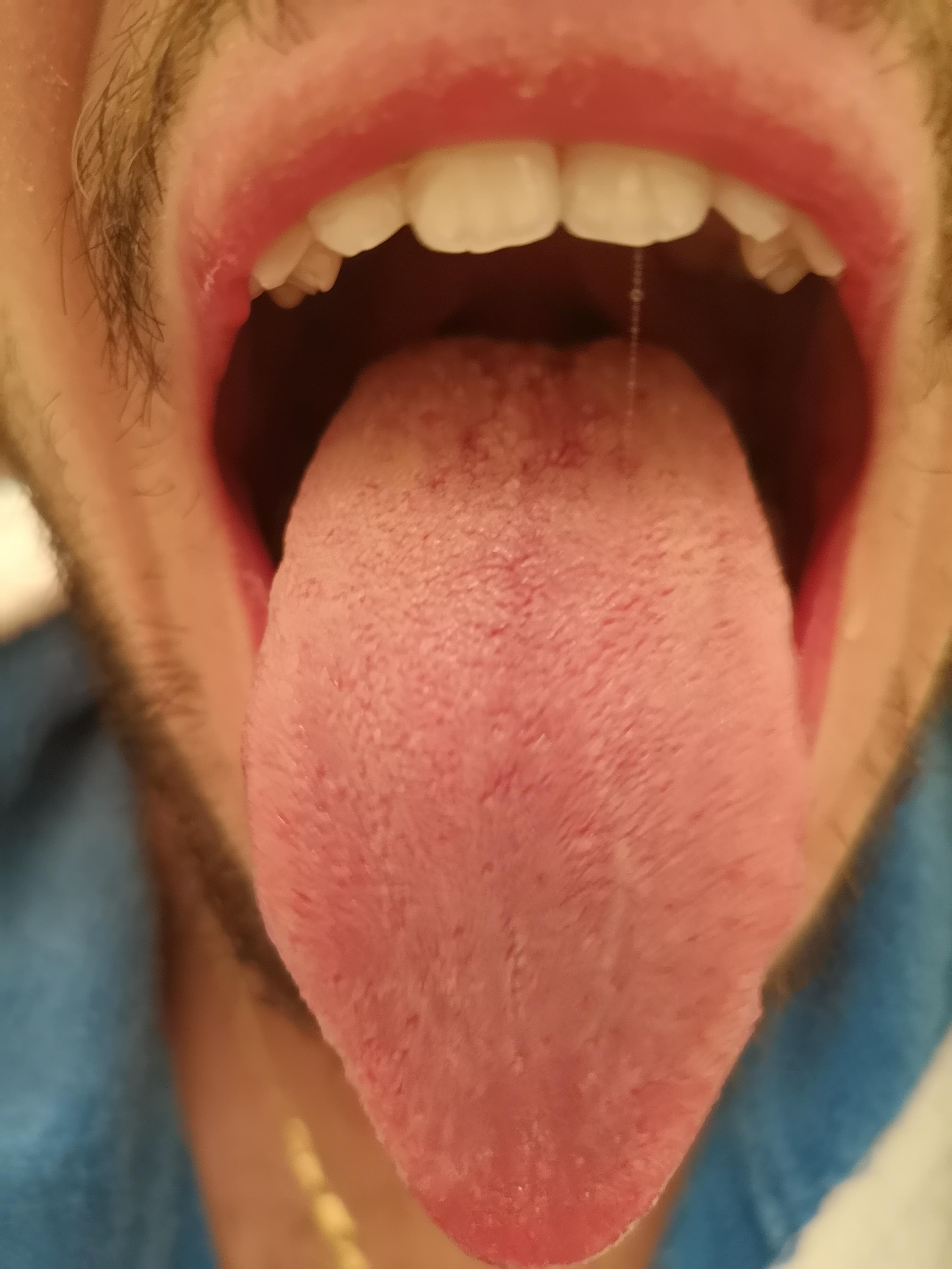 Da circa un mese e mezzo presento la lingua con una sorta di patina bianco giallastra.