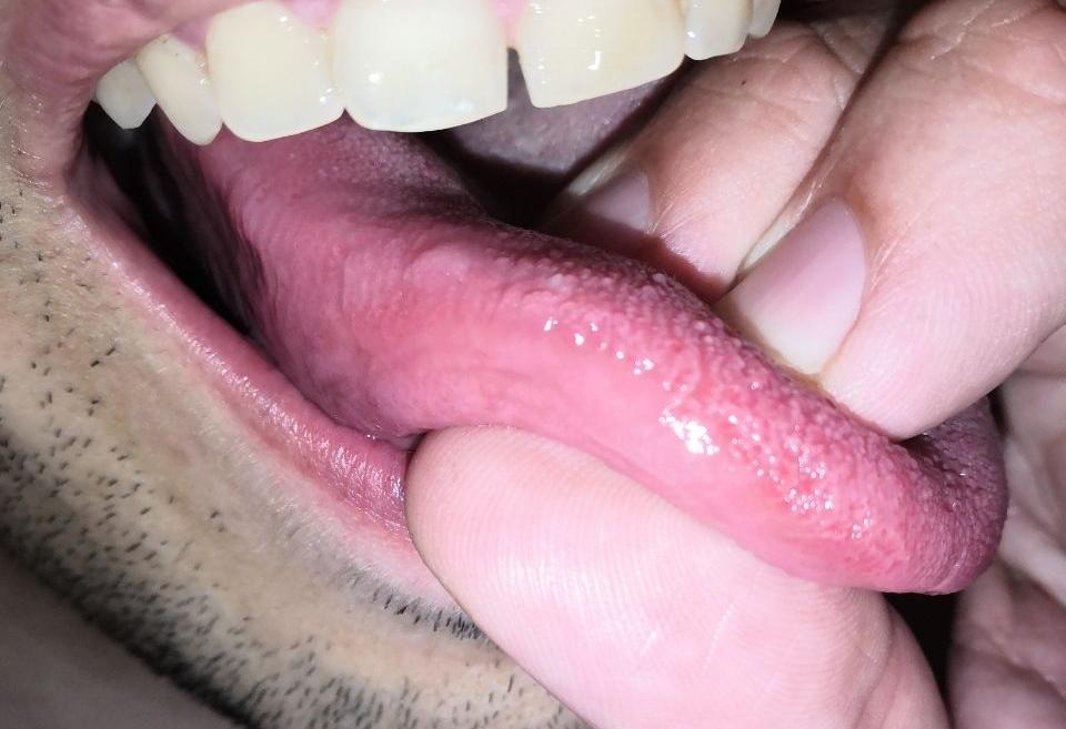 Escrescenza bianca sulla lingua