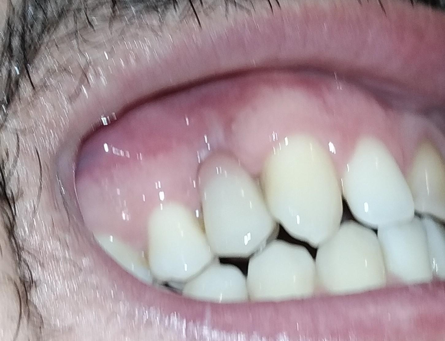 Ho subito un intervento di implantologia ad un primo premolare superiore destro.