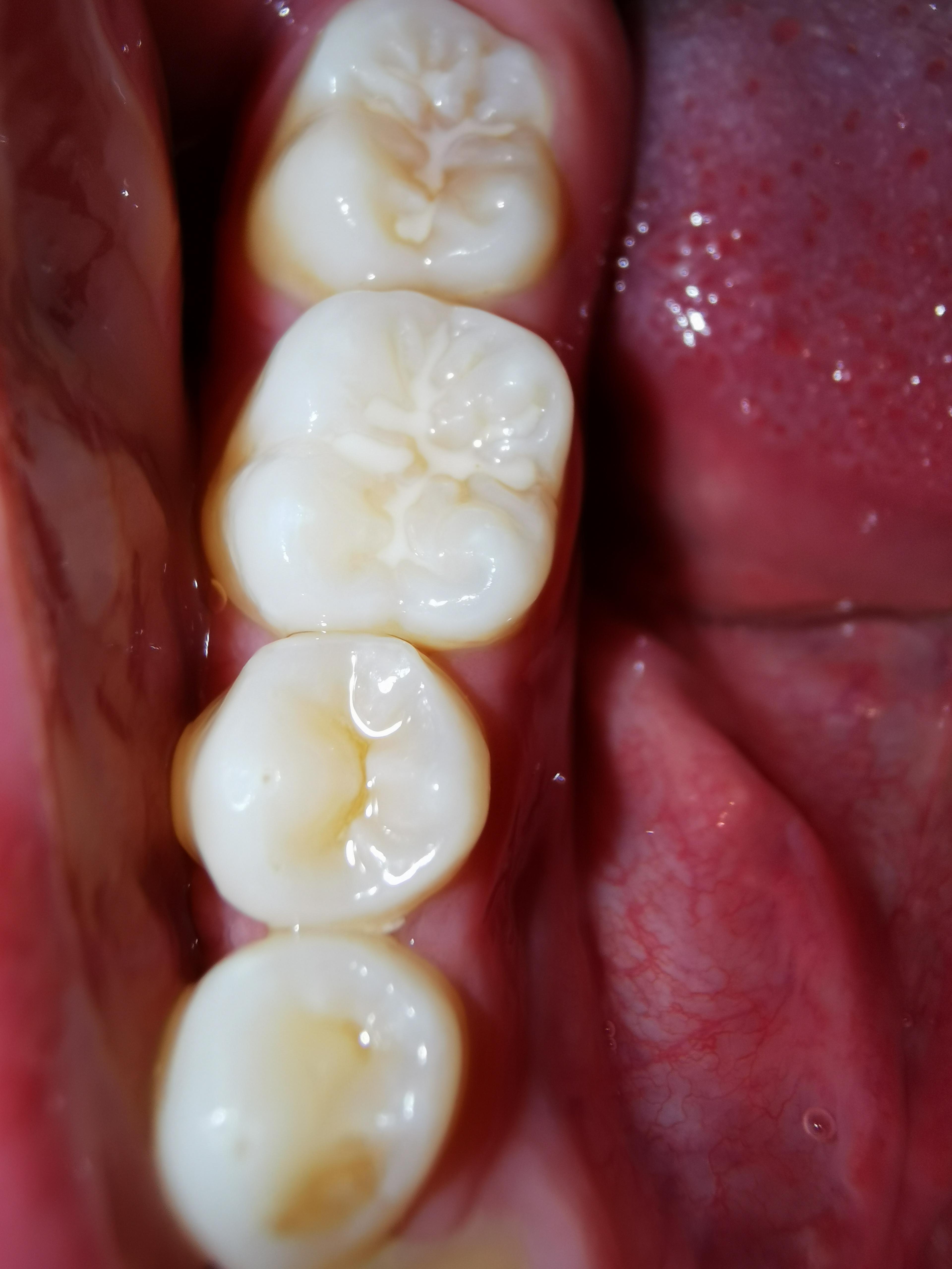 Ho notato da qualche settimana delle macchie bianche sui molari