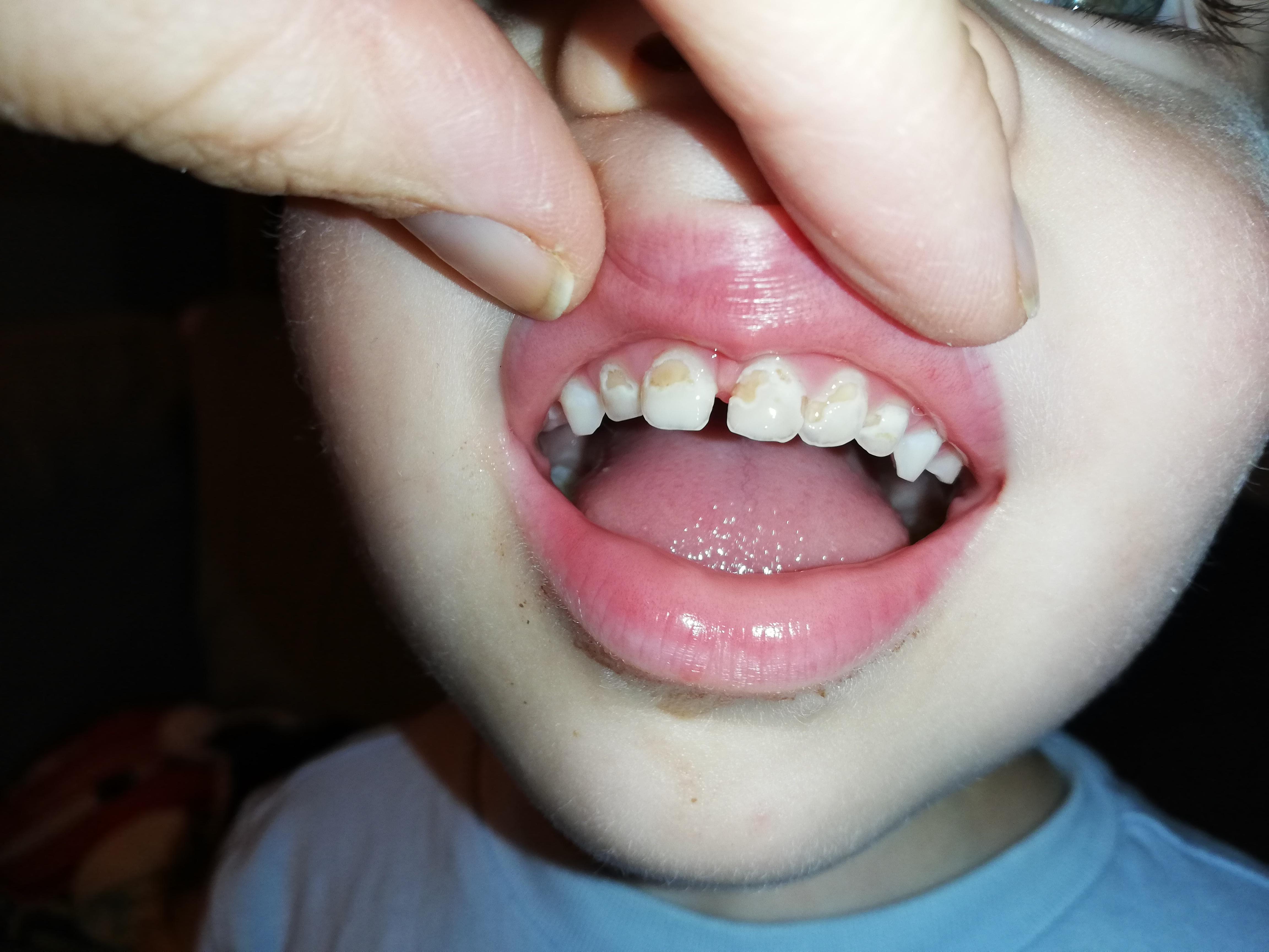 Mio figlio di 3 anni e mezzo presenta da qualche settimana delle macchie sui denti superiori
