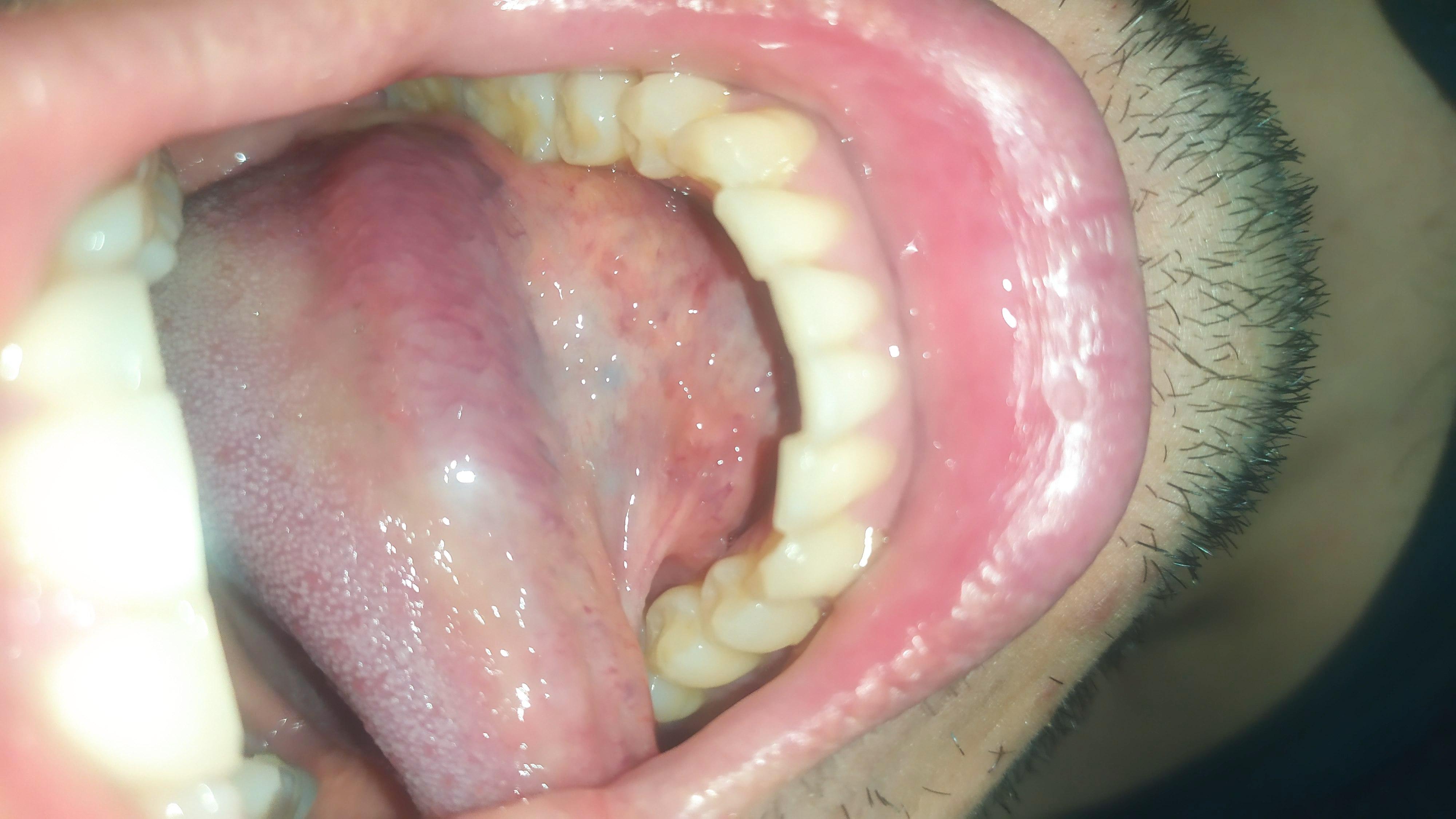 Dopo tardiva rimozione delle tonsille ho continuato ad avere senso di corpo estraneo e difficoltà a deglutire.