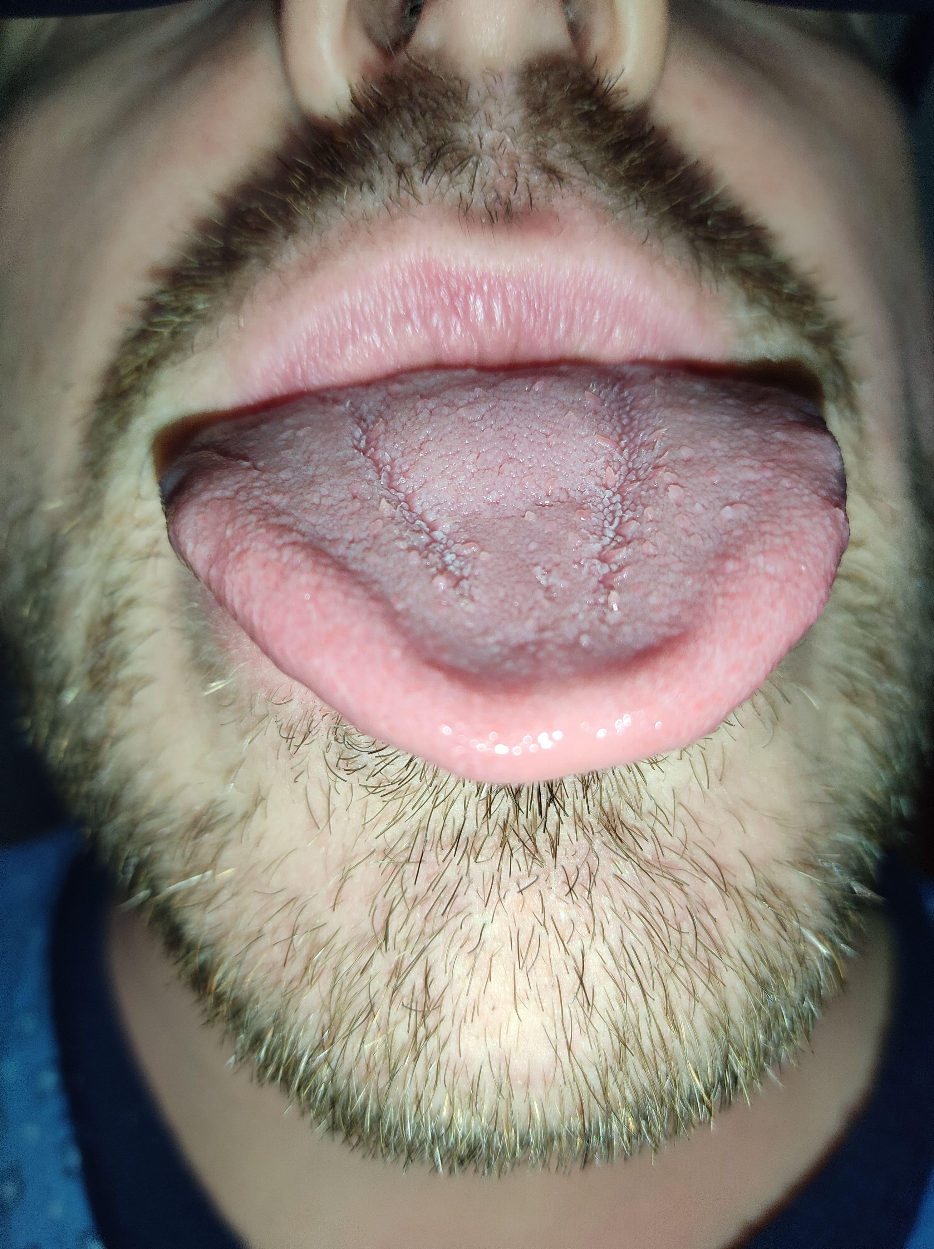Da circa una decina di giorni ho una grave infiammazione alla lingua