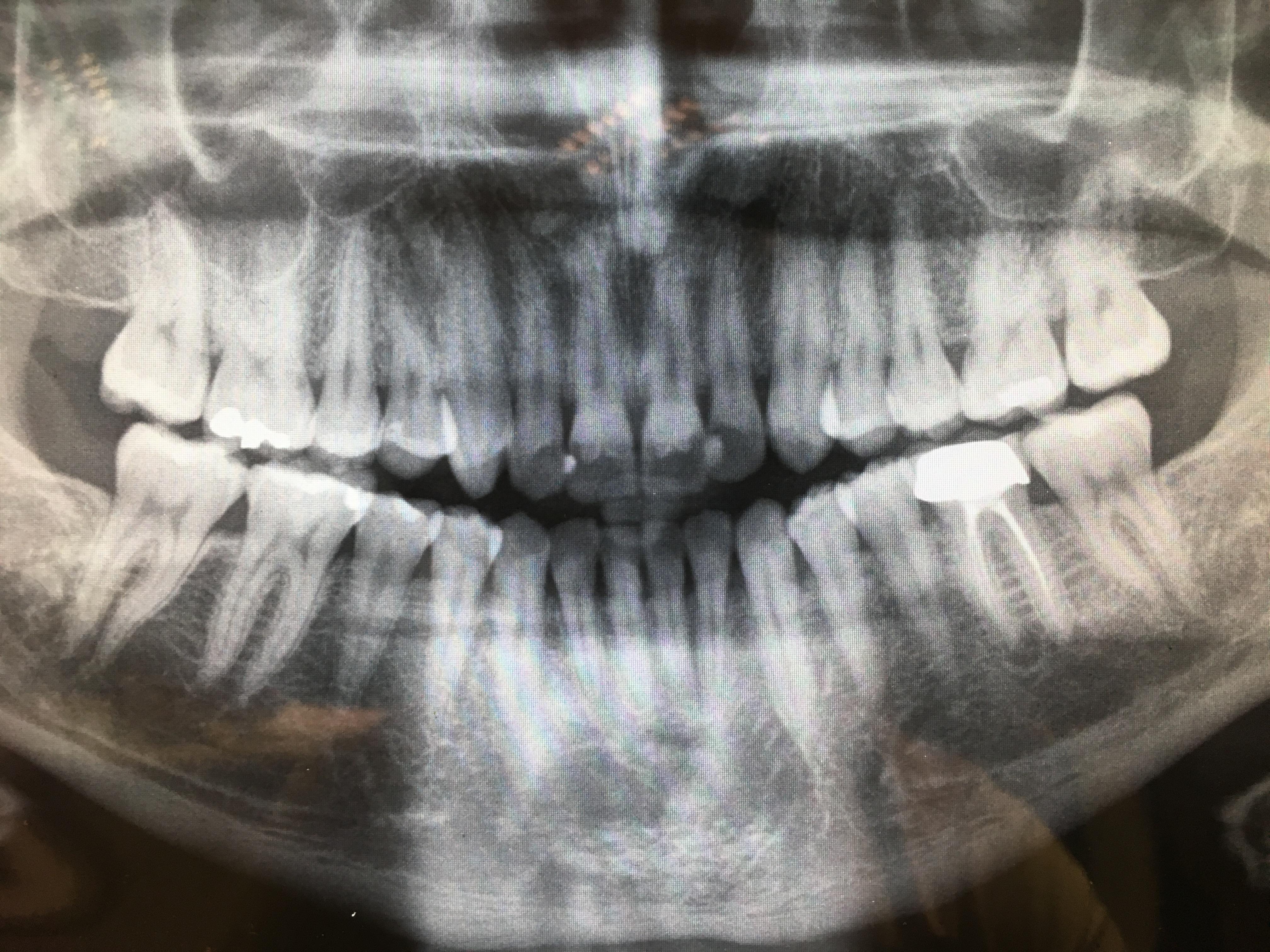 Granuloma  sotto la radice di un dente devitalizzato e incapsulato anni fa